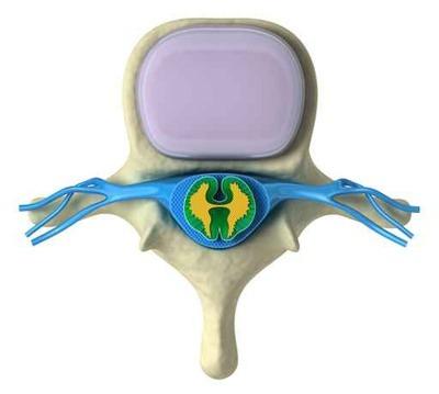 Sezione vertebra cervicale